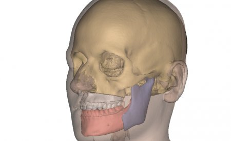 An example of 3D skull imaging